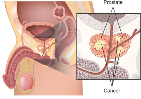 prostate cancer, Soteria Medical, non-melanoma skin cancer